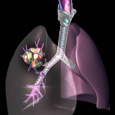 Dia-internacional-del-cancer-de-pulmon