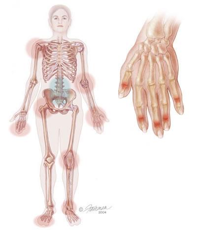 La-inflamación-causada-por-la-psoriasis-puede-afectar-las-articulaciones