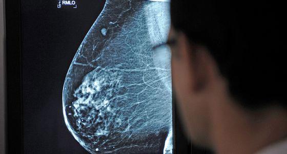 Mamografia-2
